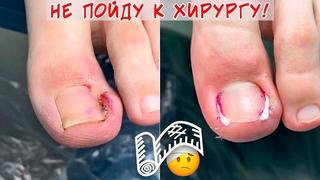 Вросший ноготь и гной под ногтем / Горький опыт обращения к хирургу